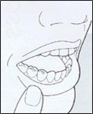 tandplak2